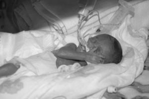 Lauren Wiltz, 16 days after her birth