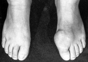 A foot with gout. Black men suffer from higher rates of gout because of high blood pressure and the oral medications needed to treat disease.