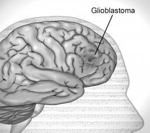 GBM-Brain-Tumor-080717