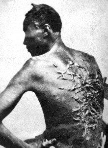 This famous 1863 photo of a severely beaten and scarred runway slave named Gordon depicts some of the horrors of slavery that are being undermined in many classrooms across the nation. Some teachers have even called slaves 'servants.'